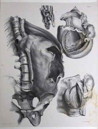 THE SECOND FASCICULUS OF ANATOMICAL DRAWINGS, Chatham Army Medical Museum